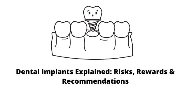 Dental Implants Explained: Risks, Rewards & Recommendations